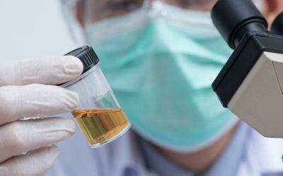 Exame Toxicológico Ocupacional – o que sua empresa precisa saber?